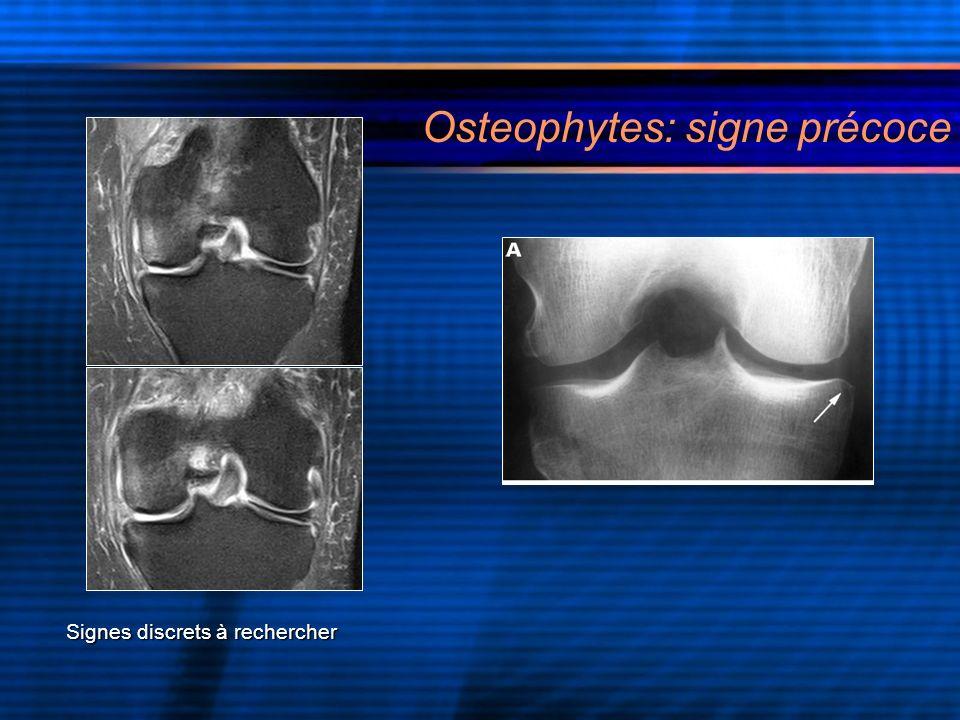 Signes discrets à rechercher Osteophytes: signe précoce