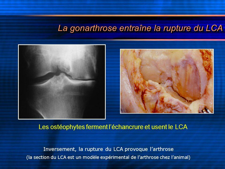 La gonarthrose entraîne la rupture du LCA La gonarthrose entraîne la rupture du LCA Inversement, la rupture du LCA provoque larthrose (la section du L