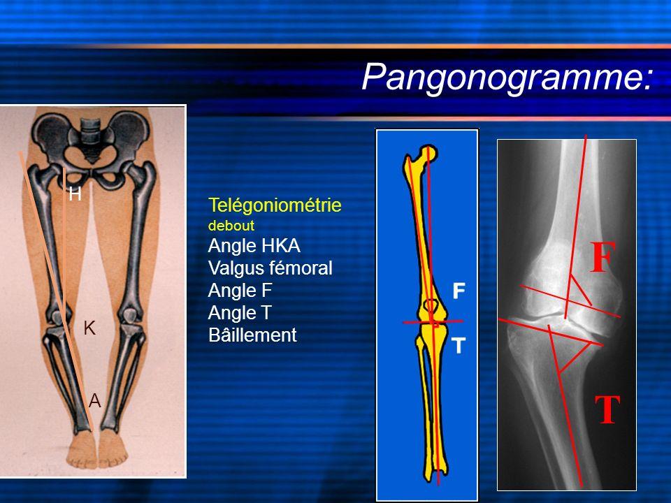 Telégoniométrie debout Angle HKA Valgus fémoral Angle F Angle T Bâillement Pangonogramme: F T H K A