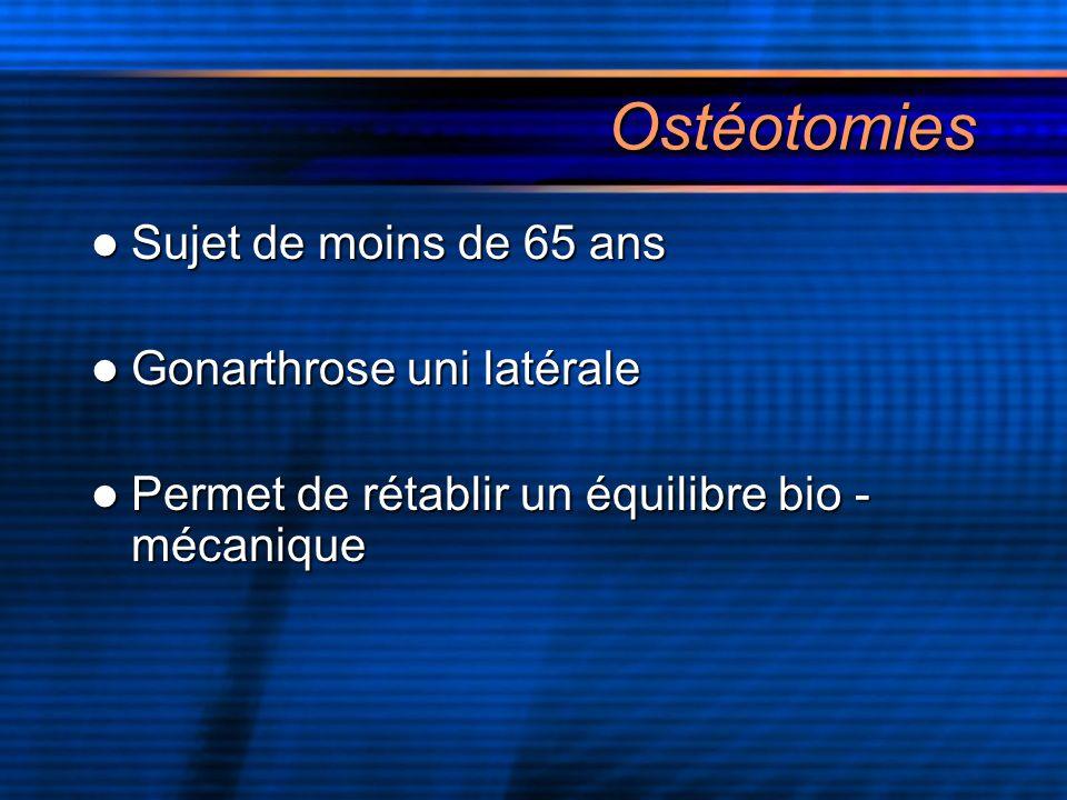 Ostéotomies Sujet de moins de 65 ans Sujet de moins de 65 ans Gonarthrose uni latérale Gonarthrose uni latérale Permet de rétablir un équilibre bio -