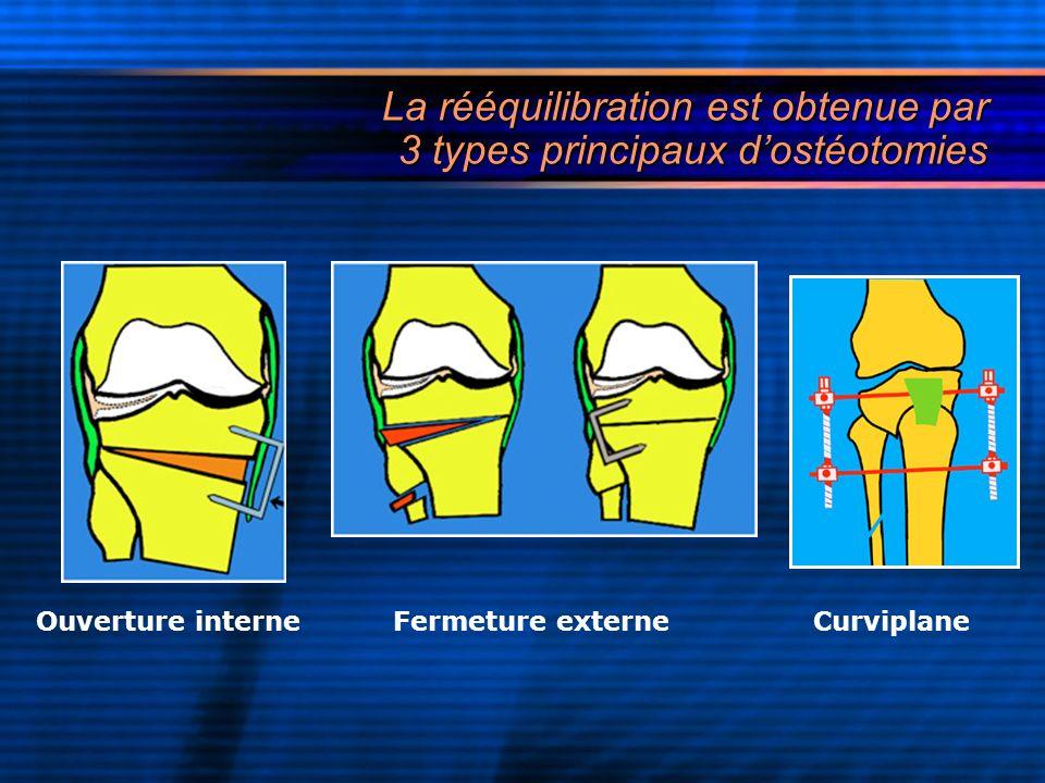 La rééquilibration est obtenue par 3 types principaux dostéotomies Ouverture interne Fermeture externe Curviplane