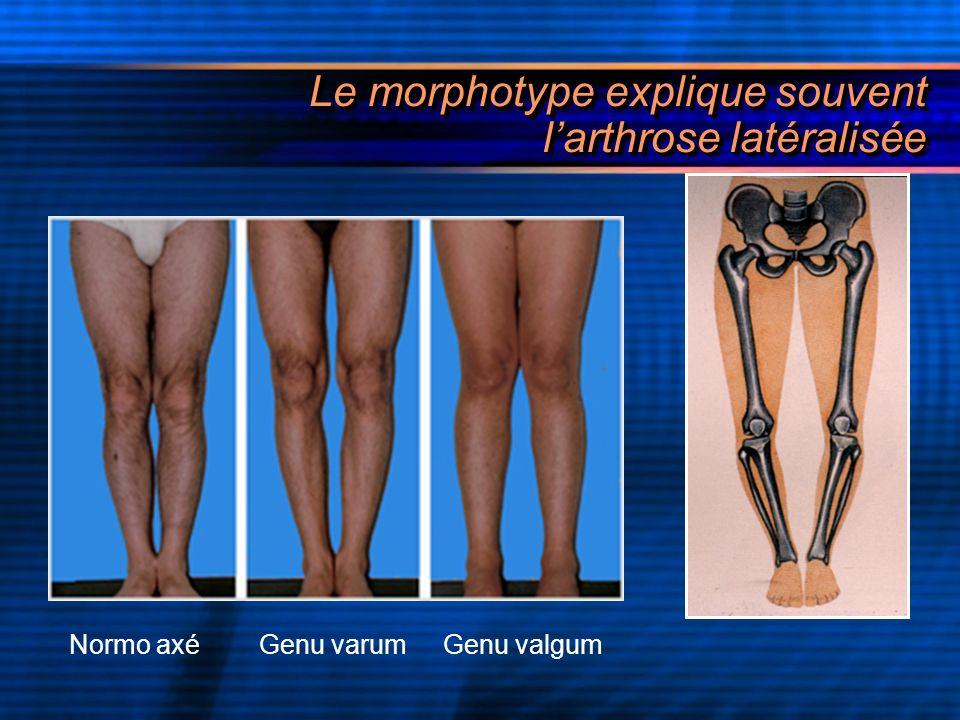 La gonarthrose interne sur genu varum Elle peut potentialiser et aggraver toutes les causes précédentes, avec en plus la surcharge pondérale et la faiblesse du hauban externe Un défaut daxe favorise lusure dun compartiment Lusure accentue la déviation