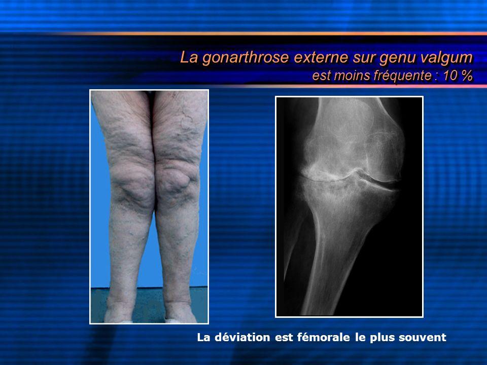 La gonarthrose externe sur genu valgum est moins fréquente : 10 % La déviation est fémorale le plus souvent