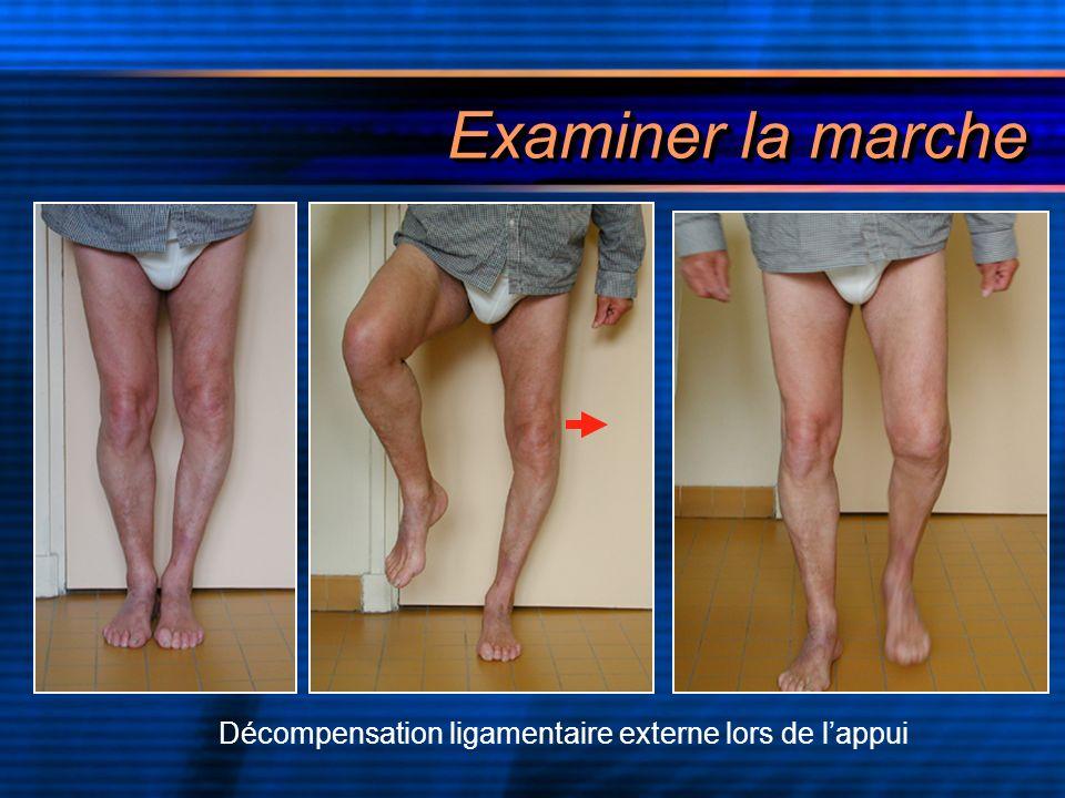 Examiner la marche Décompensation ligamentaire externe lors de lappui
