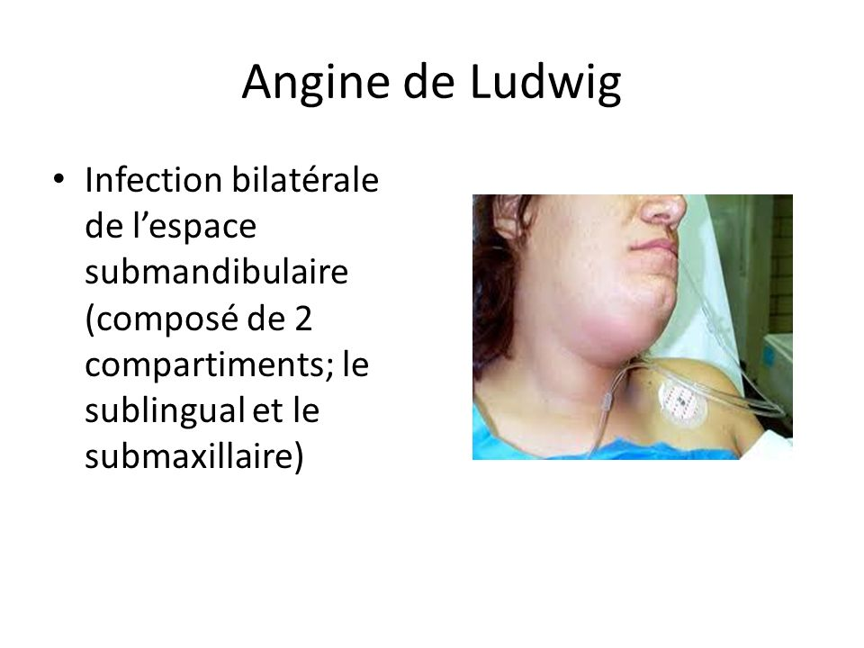 Angine de Ludwig Infection bilatérale de lespace submandibulaire (composé de 2 compartiments; le sublingual et le submaxillaire)