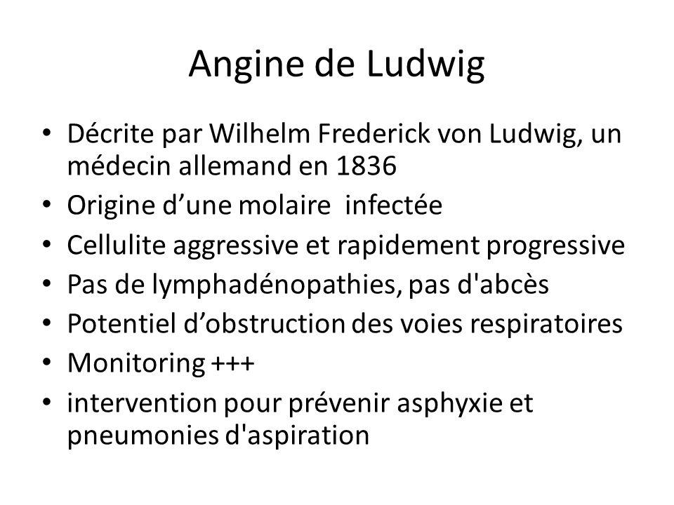 Angine de Ludwig Décrite par Wilhelm Frederick von Ludwig, un médecin allemand en 1836 Origine dune molaire infectée Cellulite aggressive et rapidemen