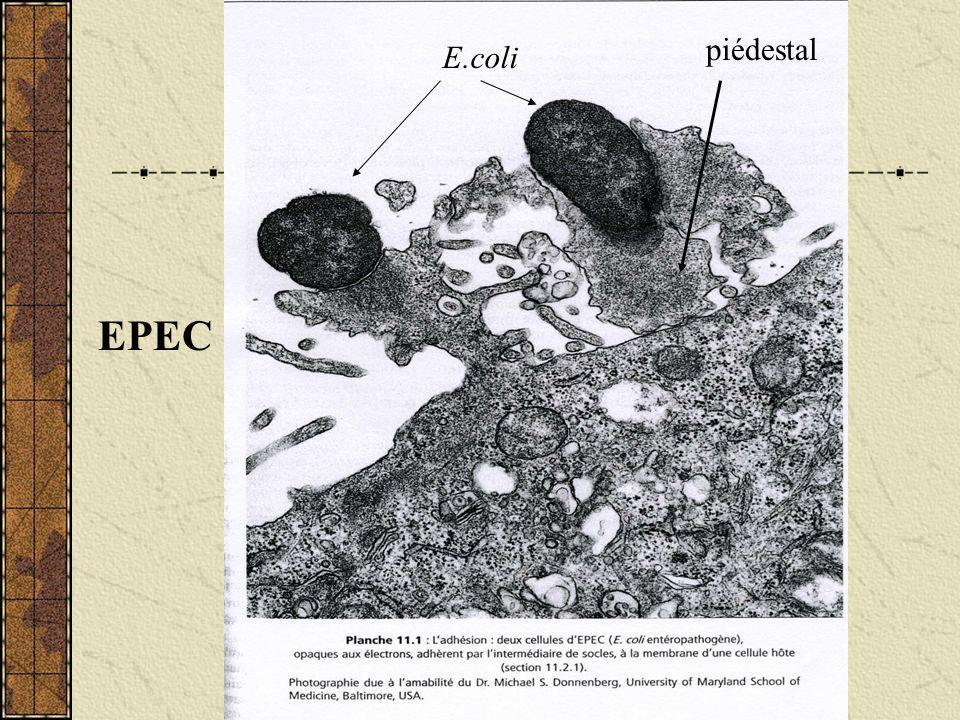 piédestal E.coli