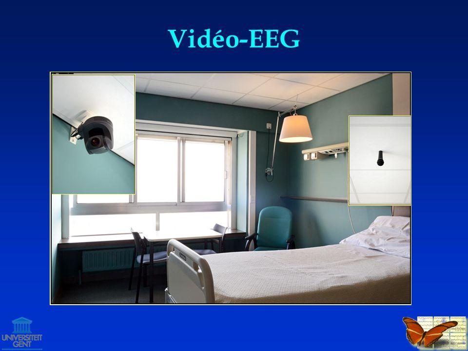 Vidéo-EEG