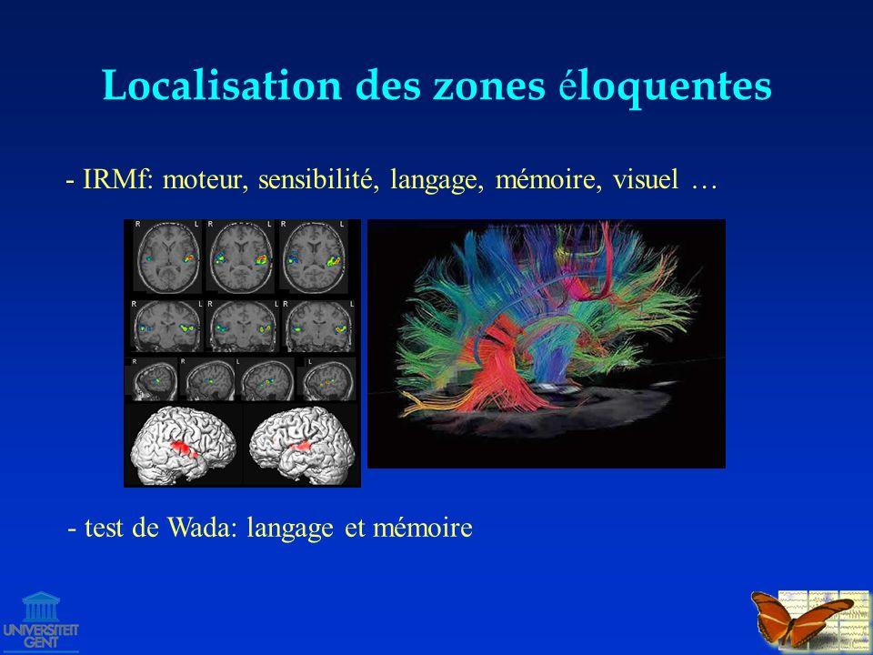 localisation de la zone épileptogène interrogatoire & examen vidéo-EEG (non-invasif ± invasif) radioilogie (IRM, PET, SPECT, MRS) neuropsychologie MEG proximité zones éloquentes .