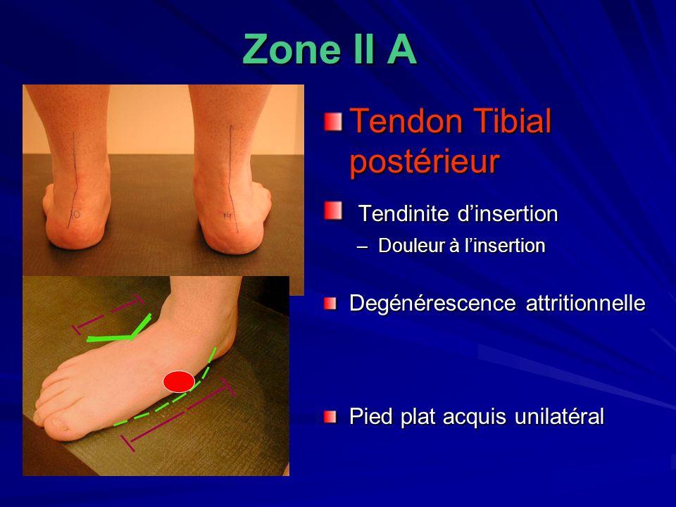 Zone II A Tendon Tibial postérieur Tendinite dinsertion Tendinite dinsertion –Douleur à linsertion Degénérescence attritionnelle Pied plat acquis unil