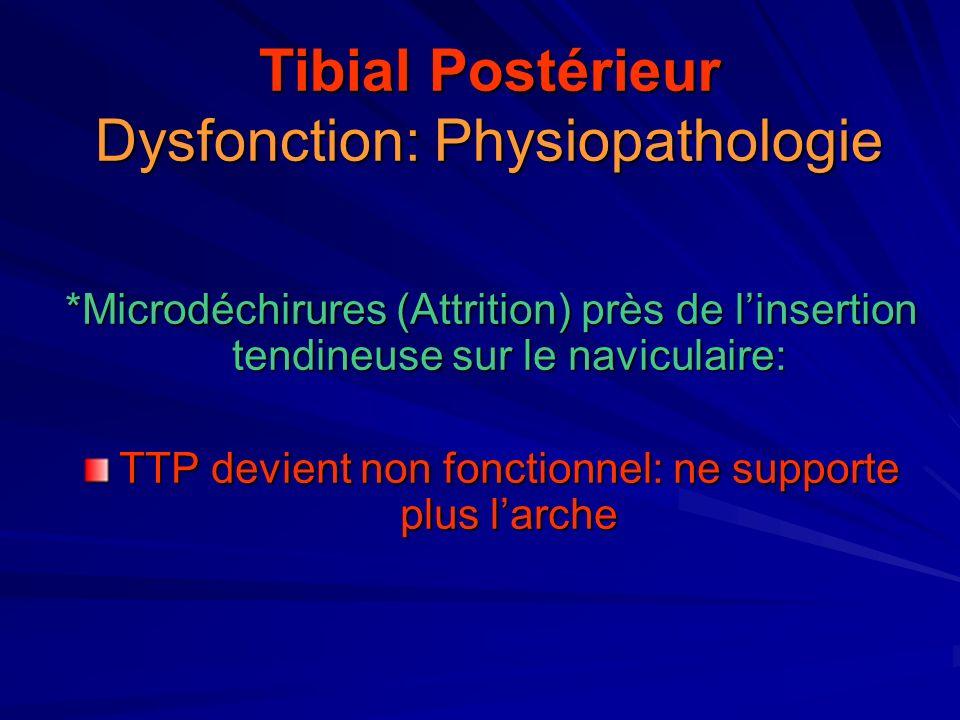 Tibial Postérieur Dysfonction: Physiopathologie *Microdéchirures (Attrition) près de linsertion tendineuse sur le naviculaire: TTP devient non fonctio