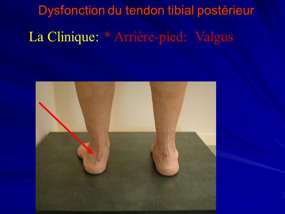 Dysfonction du tendon tibial postérieur La Clinique: * Arrière-pied: Valgus