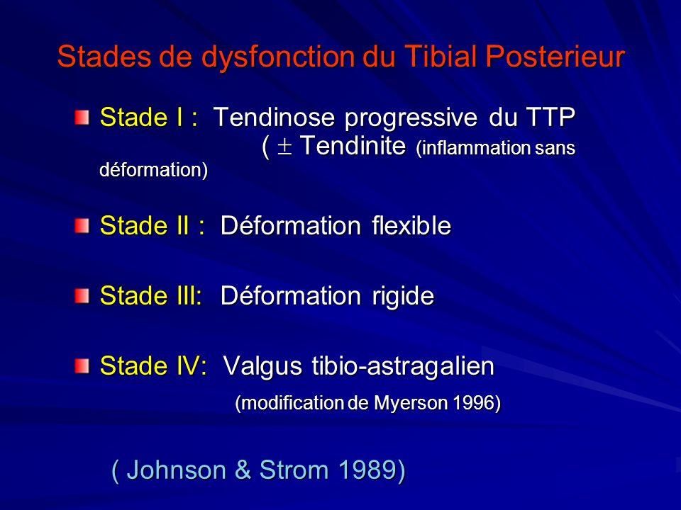 Stades de dysfonction du Tibial Posterieur Stade I : Tendinose progressive du TTP ( Tendinite (inflammation sans déformation) Stade II : Déformation f
