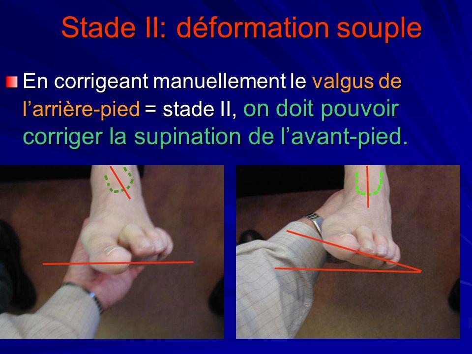 Stade II: déformation souple En corrigeant manuellement le valgus de larrière-pied = stade II, on doit pouvoir corriger la supination de lavant-pied.