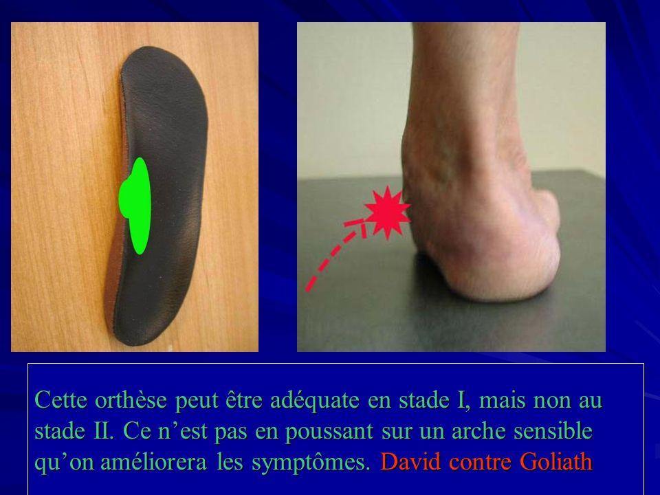 Cette orthèse peut être adéquate en stade I, mais non au stade II. Ce nest pas en poussant sur un arche sensible quon améliorera les symptômes. David