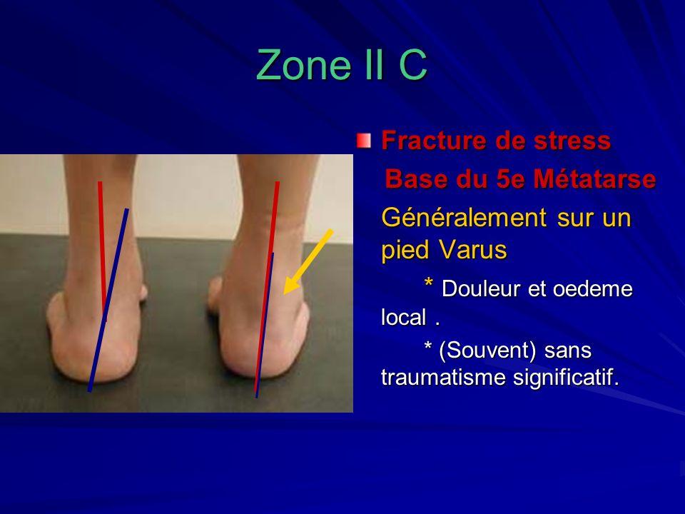 Zone II C Fracture de stress Base du 5e Métatarse Base du 5e Métatarse Généralement sur un pied Varus * Douleur et oedeme local. * (Souvent) sans trau
