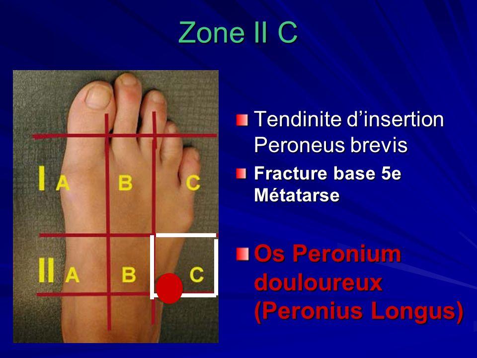 Zone II C Tendinite dinsertion Peroneus brevis Fracture base 5e Métatarse Os Peronium douloureux (Peronius Longus)