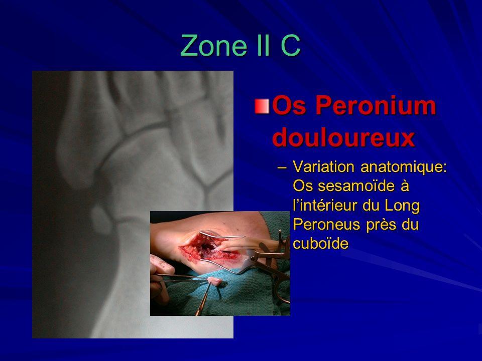 Zone II C Os Peronium douloureux –Variation anatomique: Os sesamoïde à lintérieur du Long Peroneus près du cuboïde