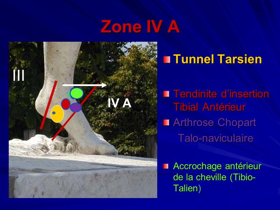 Zone IV A Tunnel Tarsien Tendinite dinsertion Tibial Antérieur Arthrose Chopart Talo-naviculaire Talo-naviculaire Accrochage antérieur de la cheville