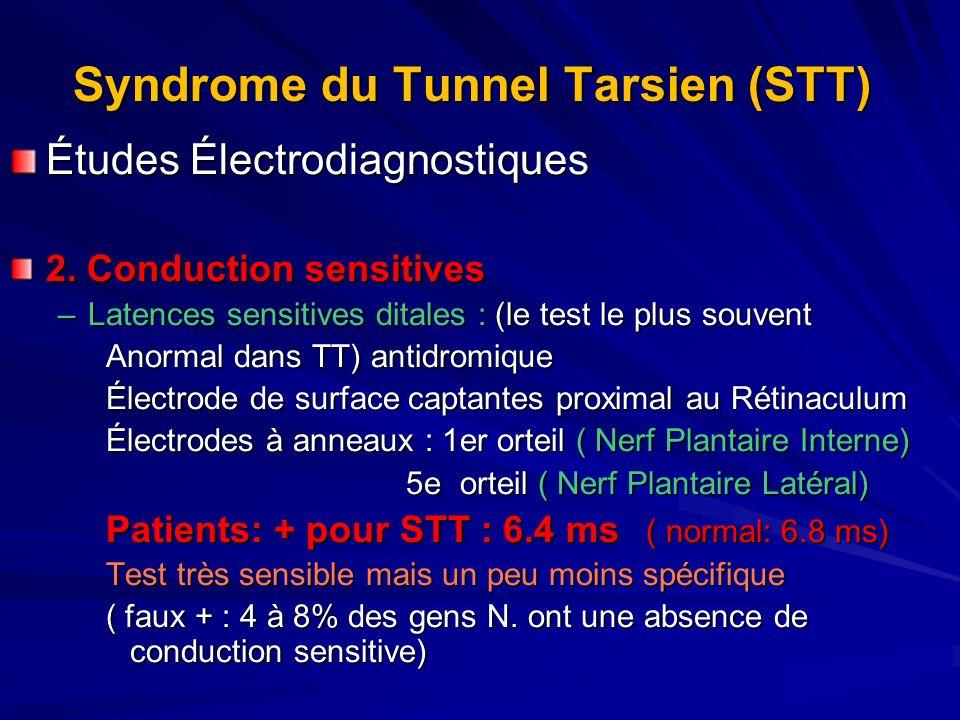 Syndrome du Tunnel Tarsien (STT) Études Électrodiagnostiques 2. Conduction sensitives –Latences sensitives ditales : (le test le plus souvent Anormal