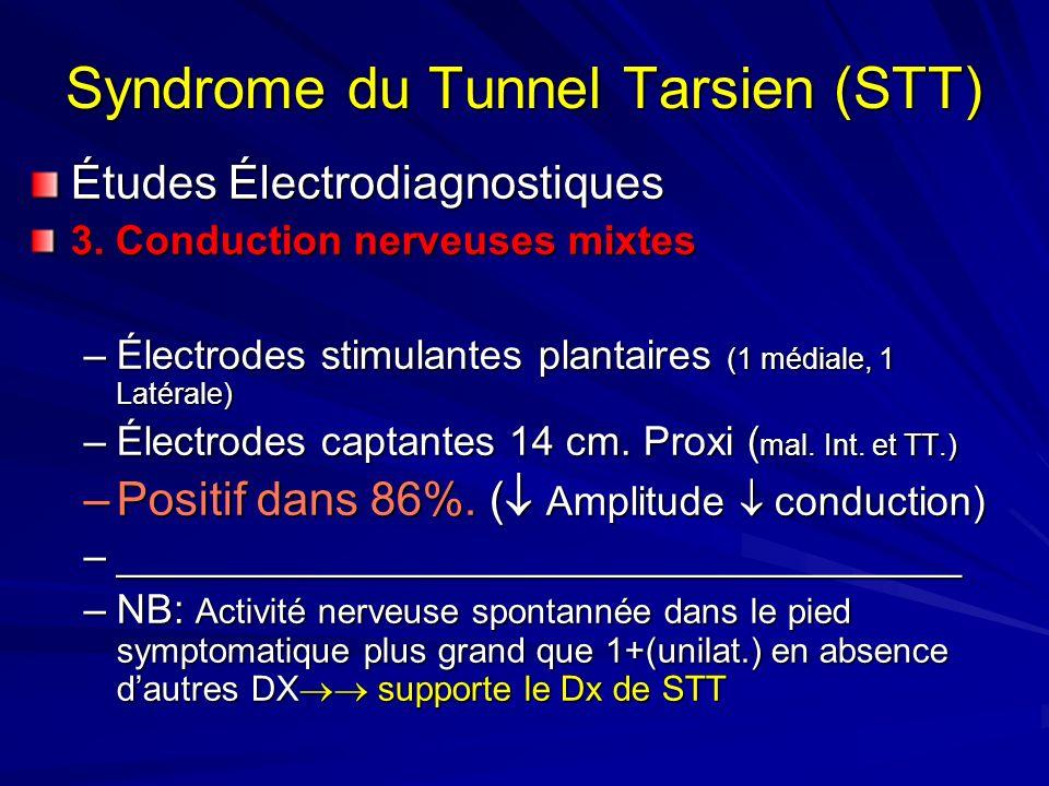 Syndrome du Tunnel Tarsien (STT) Études Électrodiagnostiques 3. Conduction nerveuses mixtes –Électrodes stimulantes plantaires (1 médiale, 1 Latérale)
