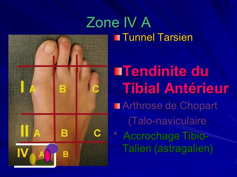 Zone IV A Tunnel Tarsien Tendinite du Tibial Antérieur Arthrose de Chopart (Talo-naviculaire (Talo-naviculaire * Accrochage Tibio- Talien (astragalien
