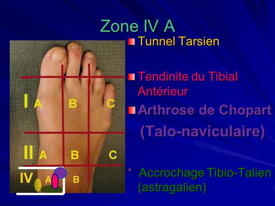 Zone IV A Tunnel Tarsien Tendinite du Tibial Antérieur Arthrose de Chopart (Talo-naviculaire) (Talo-naviculaire) * Accrochage Tibio-Talien (astragalie
