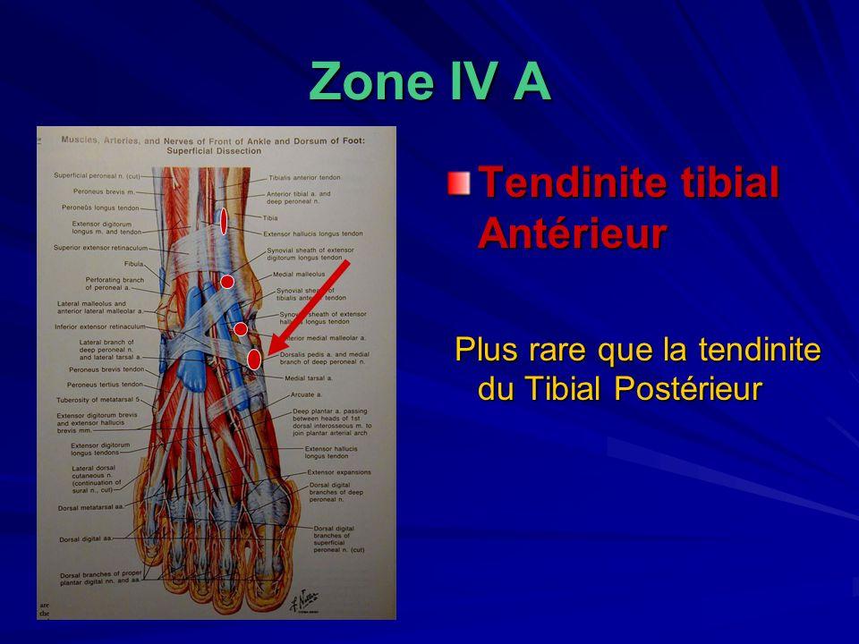 Zone IV A Tendinite tibial Antérieur Plus rare que la tendinite du Tibial Postérieur Plus rare que la tendinite du Tibial Postérieur