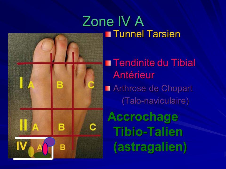 Zone IV A Tunnel Tarsien Tendinite du Tibial Antérieur Arthrose de Chopart (Talo-naviculaire) (Talo-naviculaire) Accrochage Tibio-Talien (astragalien)