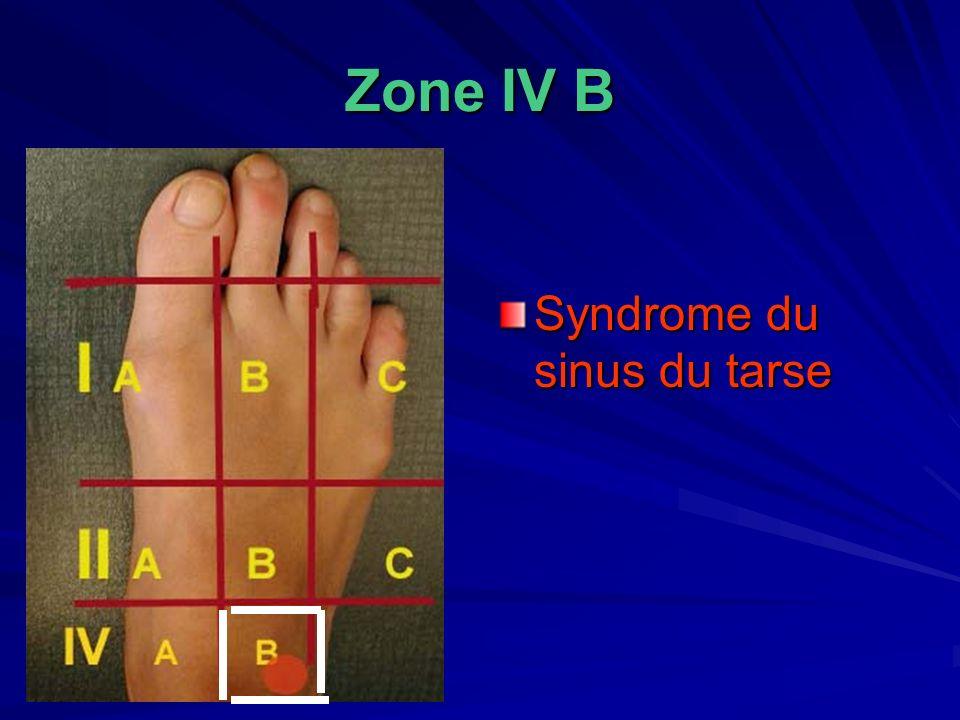 Zone IV B Syndrome du sinus du tarse