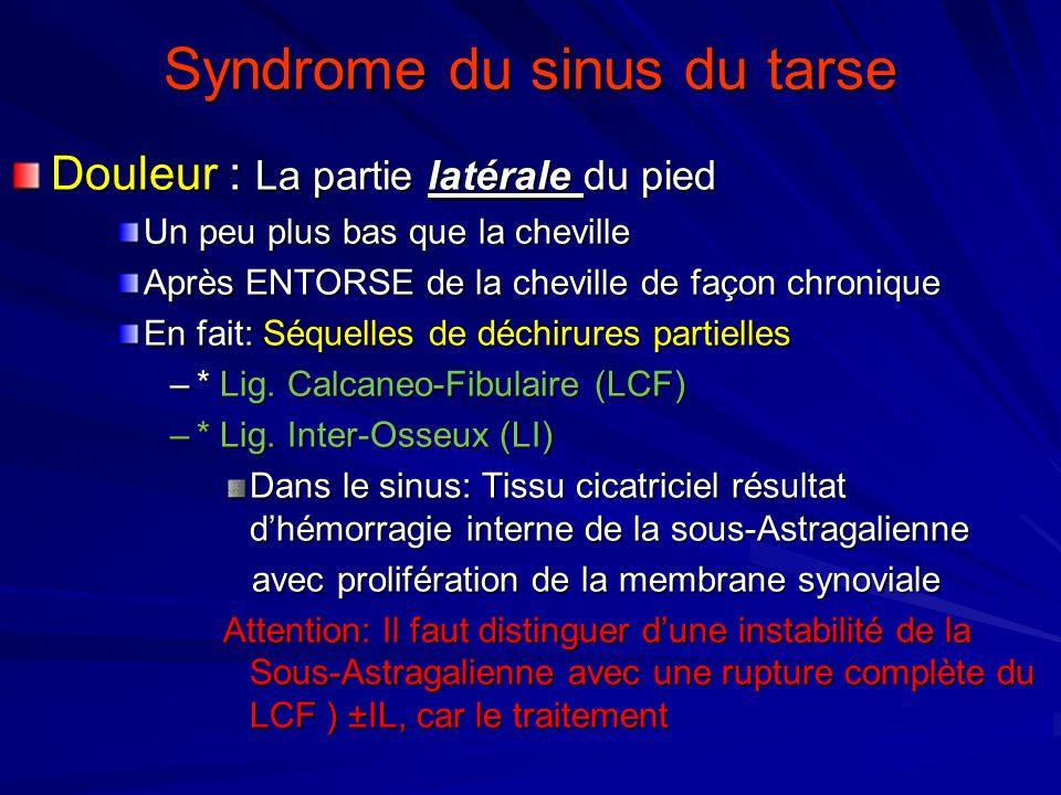 Syndrome du sinus du tarse Douleur : La partie latérale du pied Un peu plus bas que la cheville Après ENTORSE de la cheville de façon chronique En fai