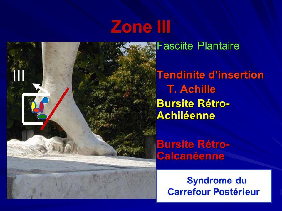 Zone III Fasciite Plantaire Tendinite dinsertion T. Achille T. Achille Bursite Rétro- Achiléenne Bursite Rétro- Calcanéenne Syndrome du Carrefour Post