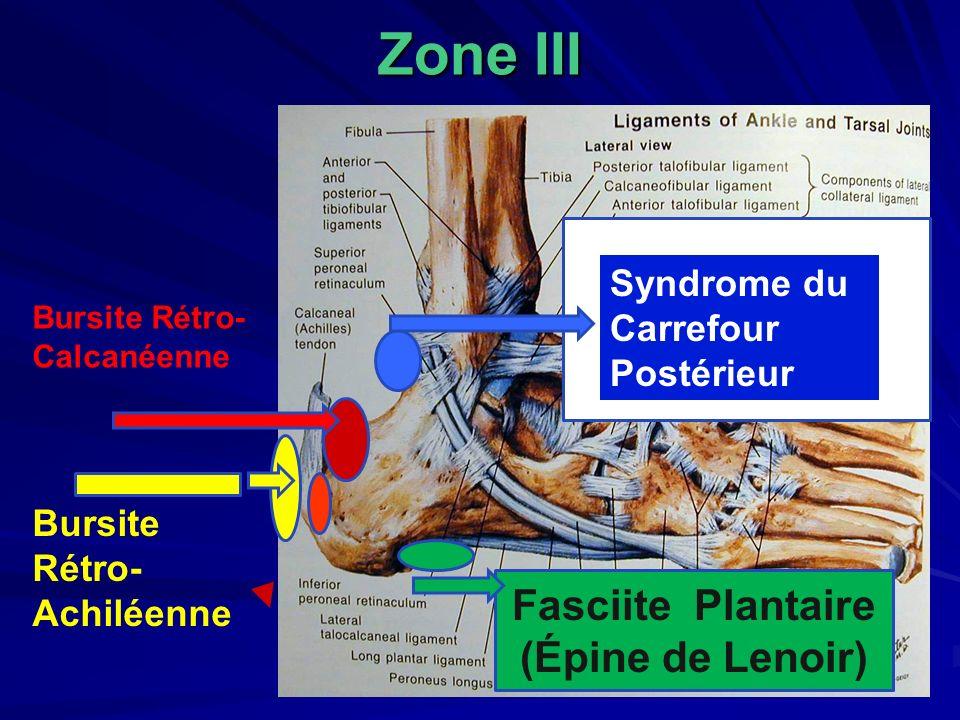 Zone III Bursite Rétro- Achiléenne Bursite Rétro- Calcanéenne Syndrome du carrefour Syndrome du Carrefour Postérieur Fasciite Plantaire (Épine de Leno
