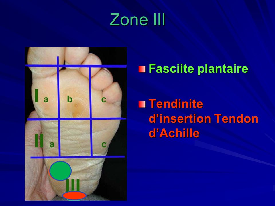 Zone III Fasciite plantaire Tendinite dinsertion Tendon dAchille