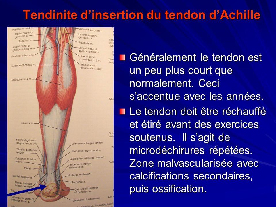 Tendinite dinsertion du tendon dAchille Généralement le tendon est un peu plus court que normalement. Ceci saccentue avec les années. Le tendon doit ê