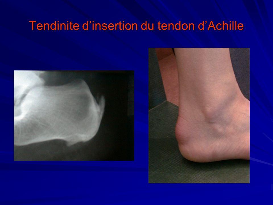 Tendinite dinsertion du tendon dAchille