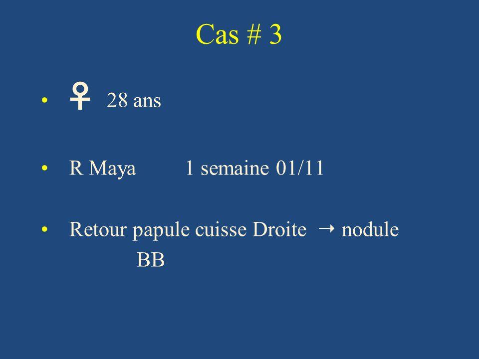 Cas # 3 28 ans R Maya 1 semaine 01/11 Retour papule cuisse Droite nodule BB