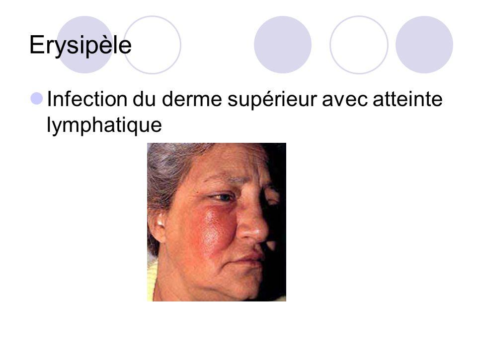 Erysipèle Infection du derme supérieur avec atteinte lymphatique