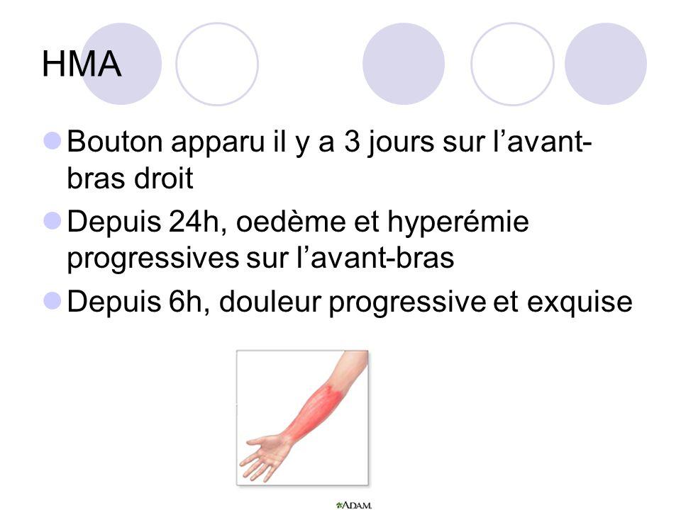 HMA Bouton apparu il y a 3 jours sur lavant- bras droit Depuis 24h, oedème et hyperémie progressives sur lavant-bras Depuis 6h, douleur progressive et exquise