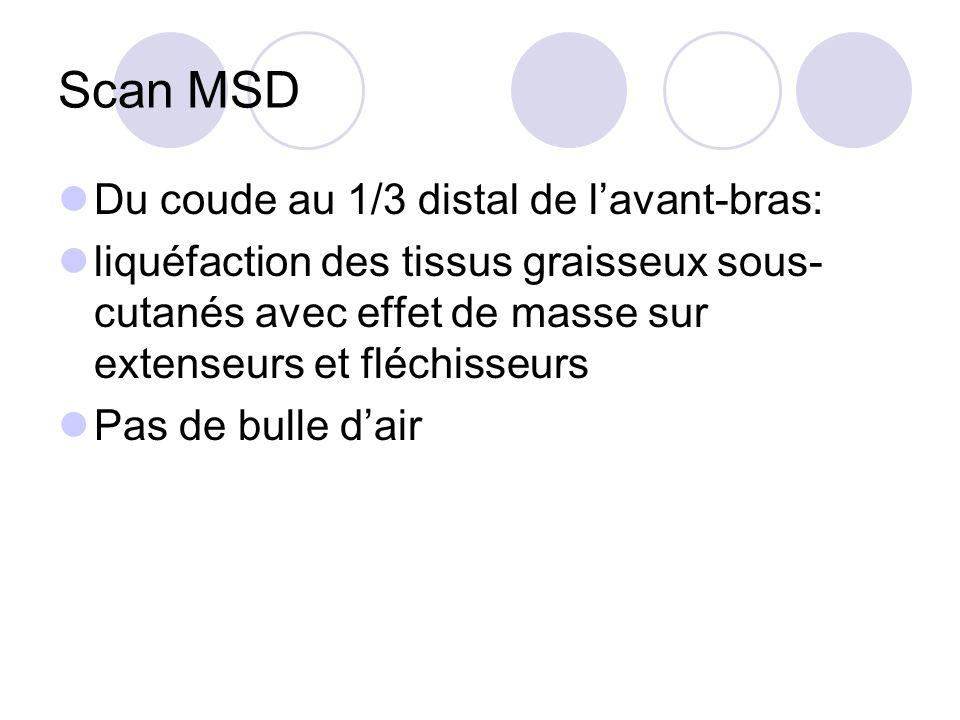 Scan MSD Du coude au 1/3 distal de lavant-bras: liquéfaction des tissus graisseux sous- cutanés avec effet de masse sur extenseurs et fléchisseurs Pas de bulle dair