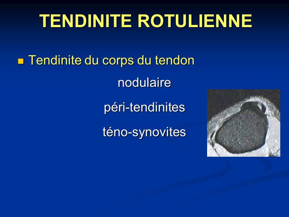TENDINITE ROTULIENNE Tendinite du corps du tendon Tendinite du corps du tendonnodulairepéri-tendinitesténo-synovites