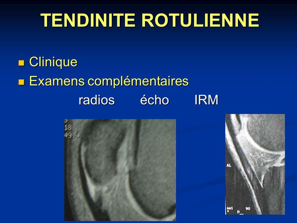 TENDINITE ROTULIENNE Clinique Clinique Examens complémentaires Examens complémentaires radios écho IRM