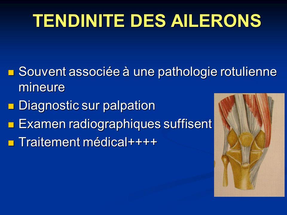 TENDINITE DES AILERONS Souvent associée à une pathologie rotulienne mineure Souvent associée à une pathologie rotulienne mineure Diagnostic sur palpat