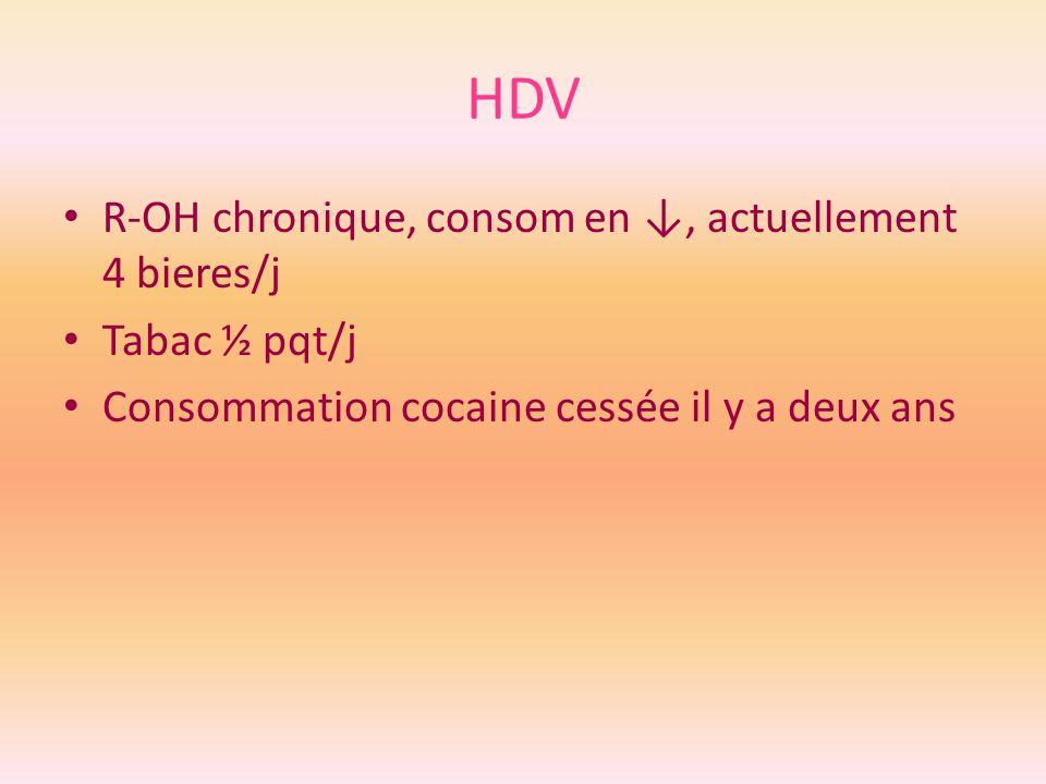 HDV R-OH chronique, consom en, actuellement 4 bieres/j Tabac ½ pqt/j Consommation cocaine cessée il y a deux ans