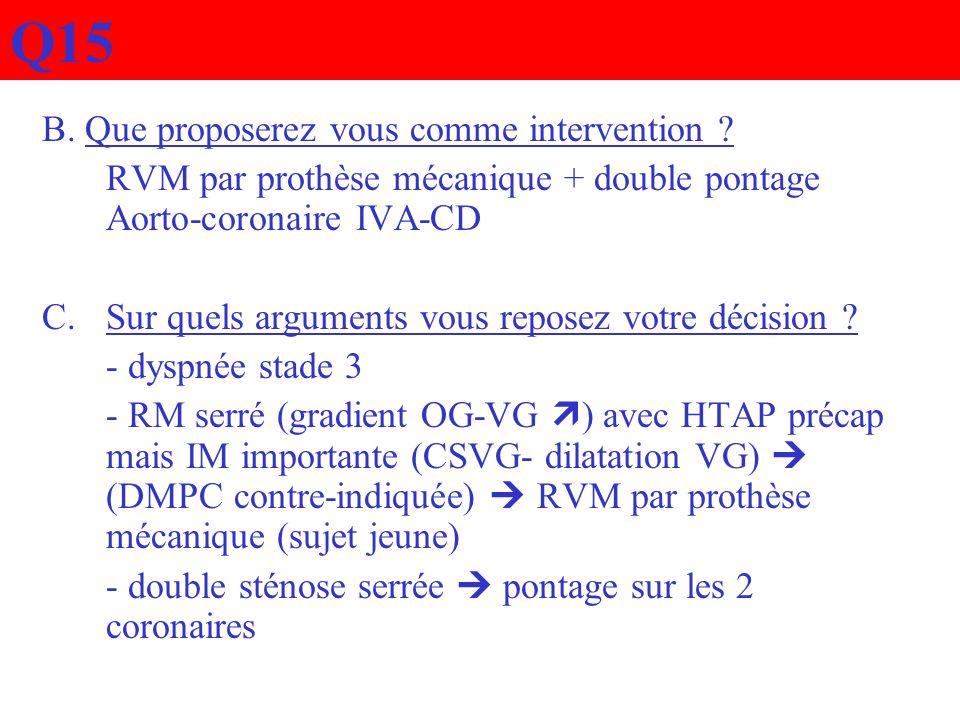 Q15 B. Que proposerez vous comme intervention ? RVM par prothèse mécanique + double pontage Aorto-coronaire IVA-CD C.Sur quels arguments vous reposez