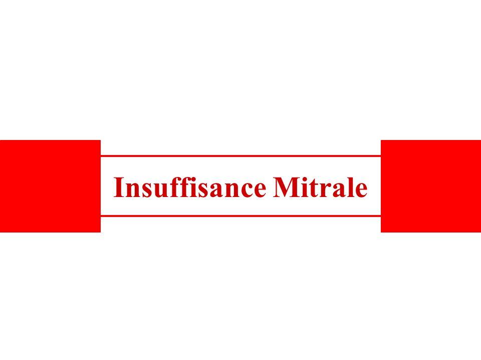 Insuffisance Mitrale