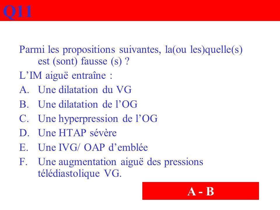 Q11 Parmi les propositions suivantes, la(ou les)quelle(s) est (sont) fausse (s) ? LIM aiguë entraîne : A.Une dilatation du VG B.Une dilatation de lOG