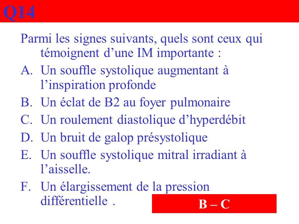 Q14 Parmi les signes suivants, quels sont ceux qui témoignent dune IM importante : A.Un souffle systolique augmentant à linspiration profonde B.Un écl