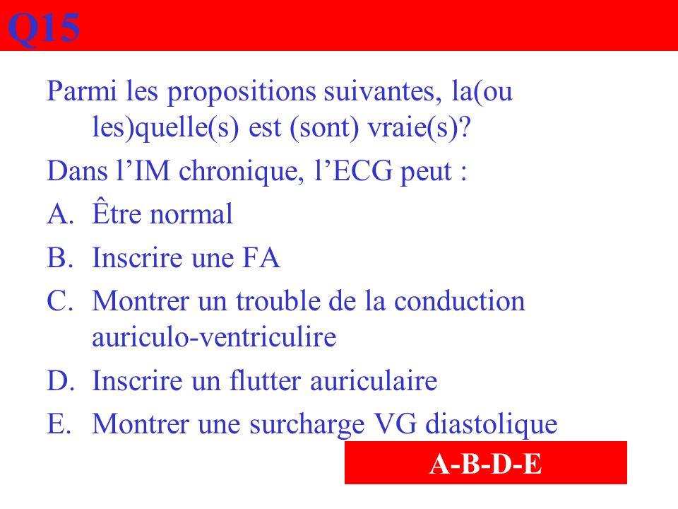 Q15 Parmi les propositions suivantes, la(ou les)quelle(s) est (sont) vraie(s)? Dans lIM chronique, lECG peut : A.Être normal B.Inscrire une FA C.Montr