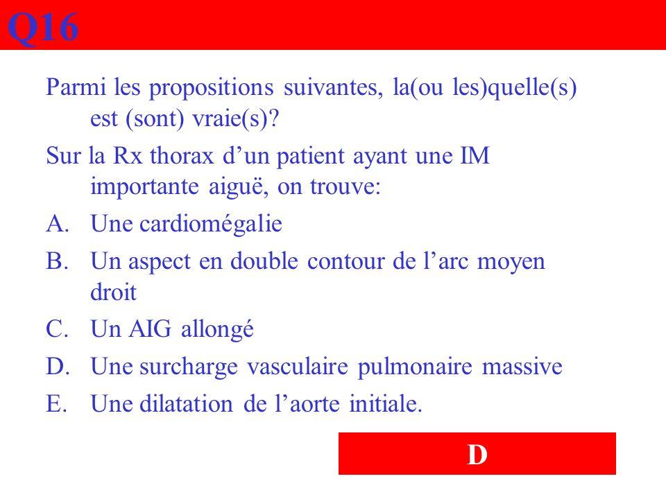 Q16 Parmi les propositions suivantes, la(ou les)quelle(s) est (sont) vraie(s)? Sur la Rx thorax dun patient ayant une IM importante aiguë, on trouve: